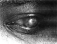 trachome.jpg